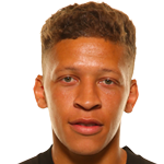 Dwight  Gayle
